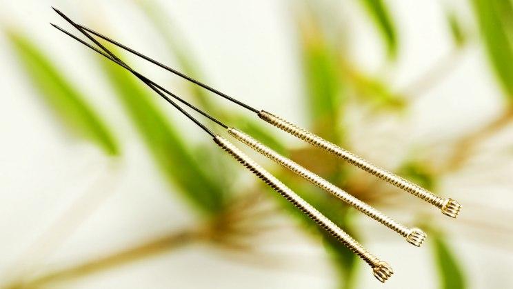 Akupunktur hilft etwa bei Rückenschmerzen
