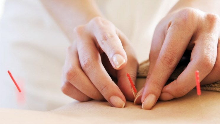 Akupunktur ist wichtiger Teil der TCM