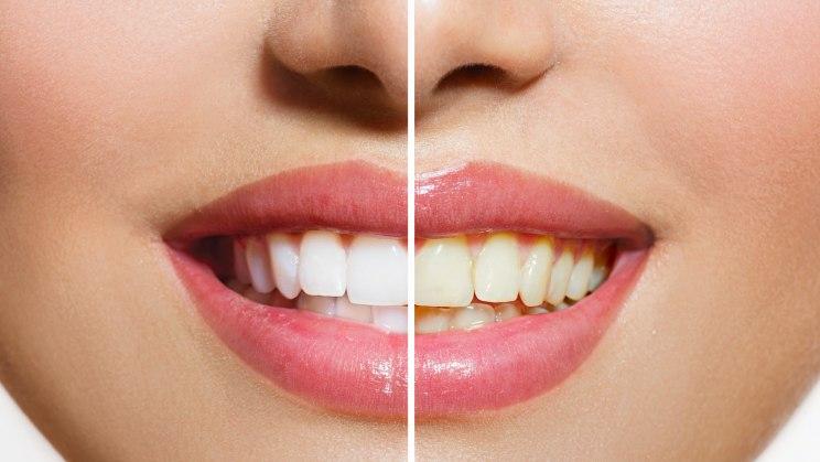 Zähne vor und nach einem Bleaching