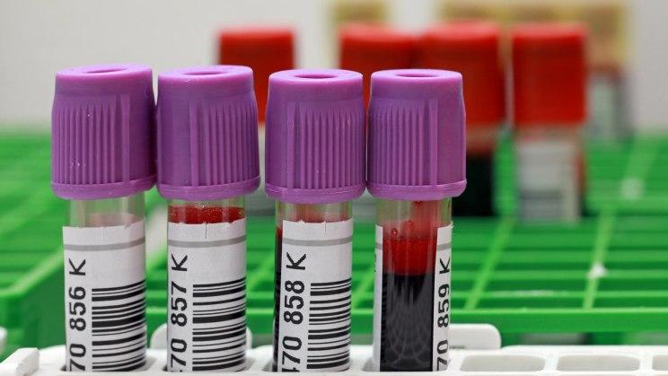 Im Blut kann ein Arzt Krankheiten ablesen