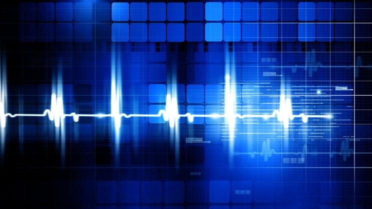 EKG - Herzströme messen