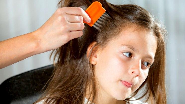 Kopfläuse - die besten Mittel und Tipps
