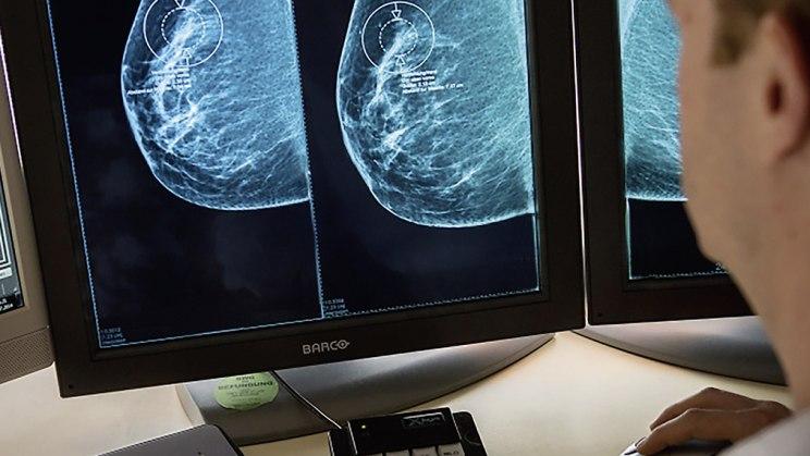 Brustkrebs - mehr Tumoren im Alter