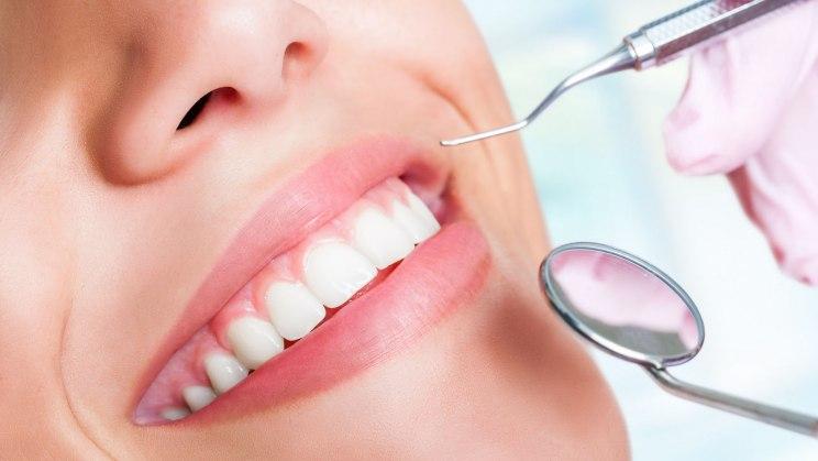 Veneers lassen die Zähne wieder strahlen