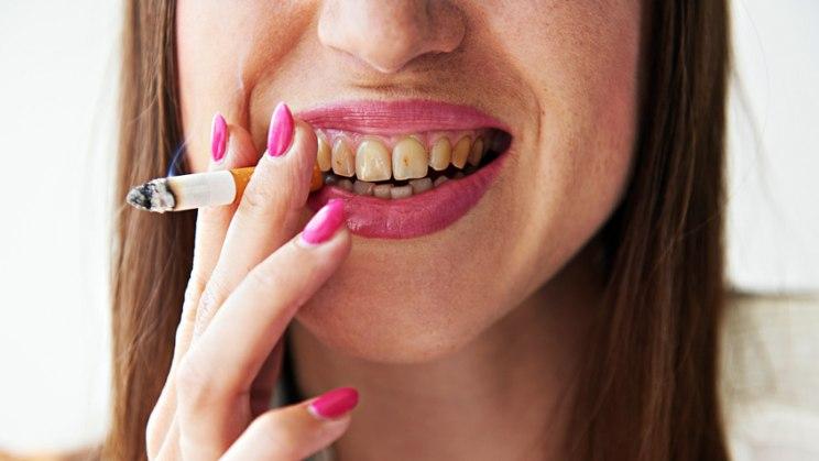 Raucher verlieren früher ihre Zähne