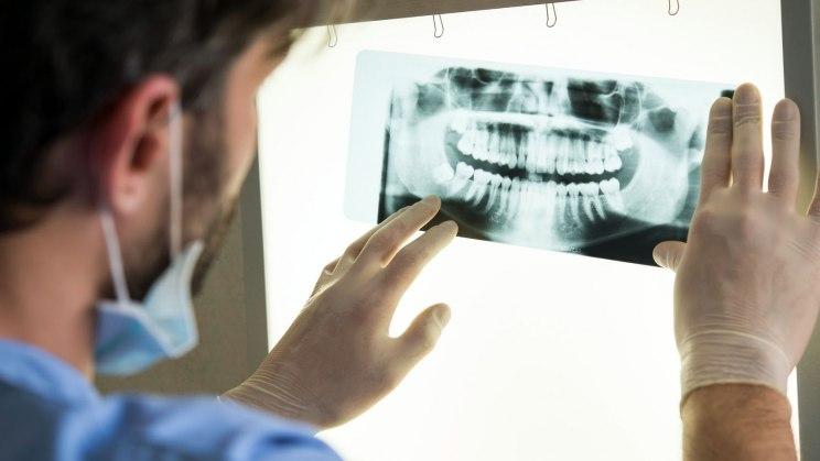 Individual-Prophylaxe - so beugen Sie Zahnschäden vor