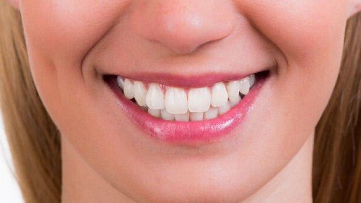 Zahnfleischbluten kann auch in der Schwangerschaft vorkommen