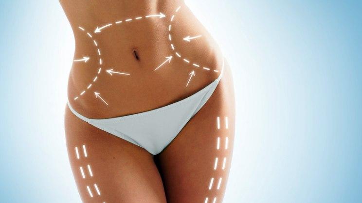 Frau mit Operationsmarkierungen: Die Kryolipolyse beseitigt Fett mit extremer Kälte