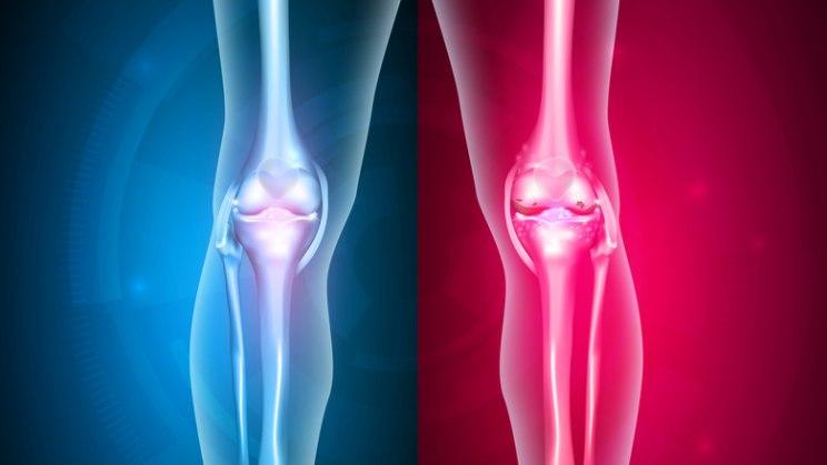 Röntgenaufnahme Kniegelenk: Fehlstelungen von Gelenken behandeln lassen