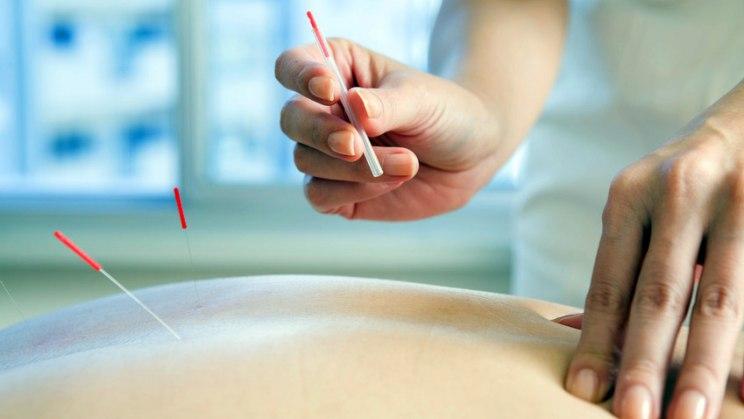 Akupunktur kann Rückenschmerzen lindern