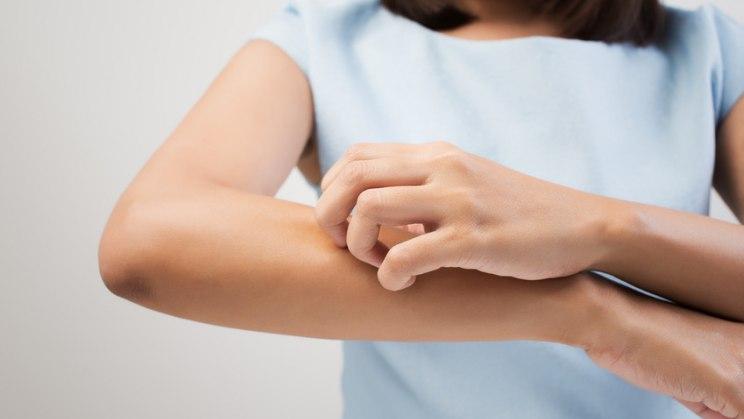 Frau kratzt sich: Bei einer Allergie gerät das Immunsystem außer Rand und Band