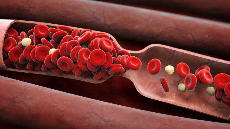 Blutgefäß: Bei Arteriosklerose verkalken die Blutgefäße