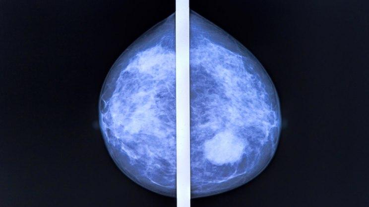 Mammografie: Die Röntgenuntersuchung kann Brustkrebs diagnostizieren