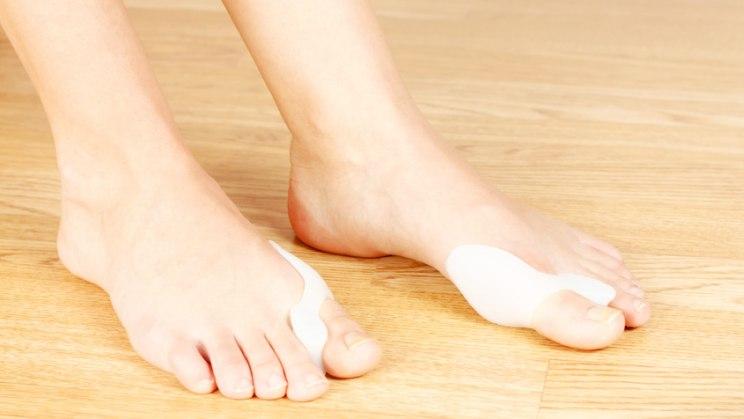 Frau mit Hallux valgus: Die Ballenzehe wird häufig durch falsches Schuhwerk verursacht