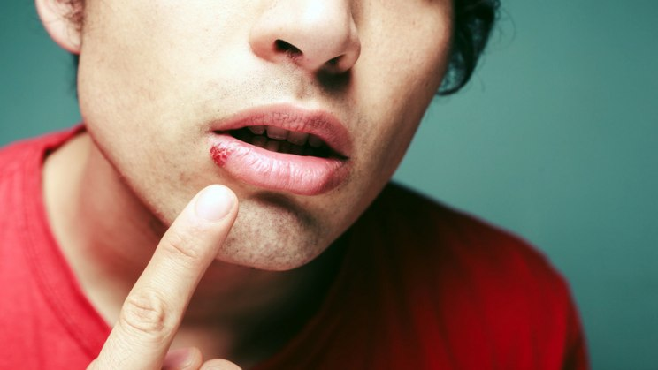 Lippenherpes - schmerzhafte Bläschen an den Lippen
