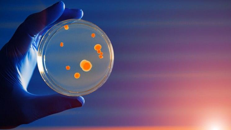 Petrischale mit Keimen: Eine Listeriose wird durch Listerien in Lebensmitteln verursacht