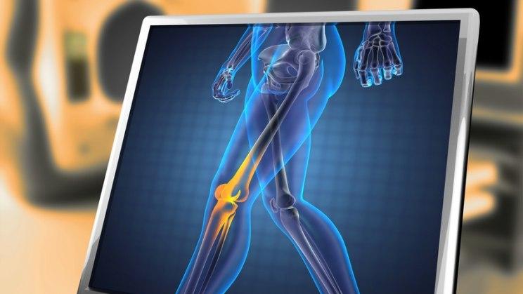 Röntgenbild Mensch: Bei Osteoporose werden die Knochen brüchig