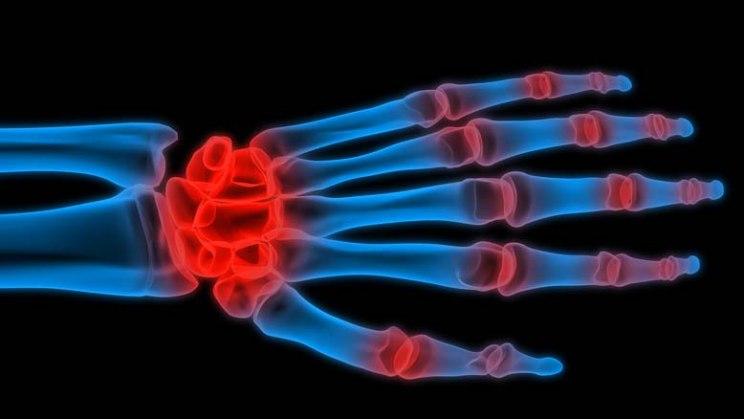 Röngenaufnahme der Hand: Bei Rheuma sind die Gelenke in Händen und Zehen entzündet