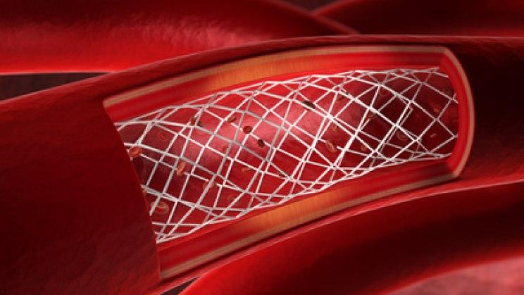 Stent in Gefäß: Bei einem Schlaganfall ist meist ein Gefäß blockiert