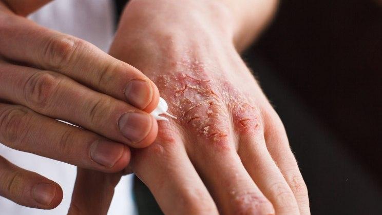Kontaktallergie Behandeln Helfen Salben Mit Antihistaminika