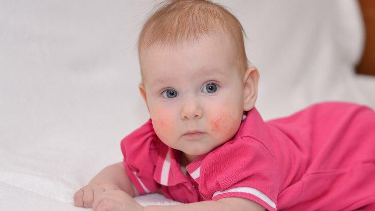 Ein allergischer Hautausschlag verursacht Pusteln und Quaddeln: Baby hat Kontaktdermatitis im Gesicht.