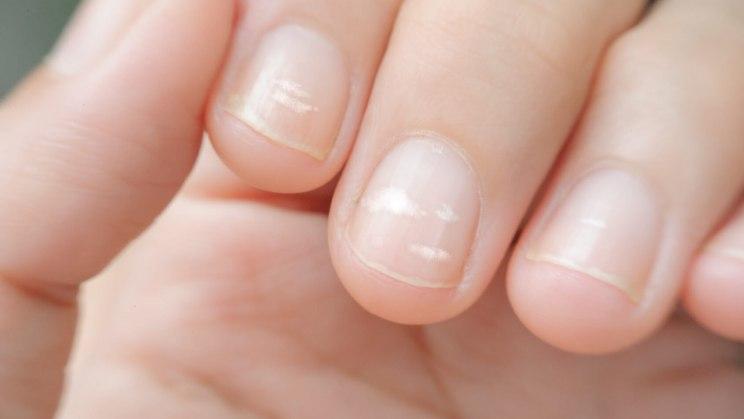 Ein Zinkmangel macht sich unter anderem durch weiße Flecken auf den Nägeln bemerkbar.