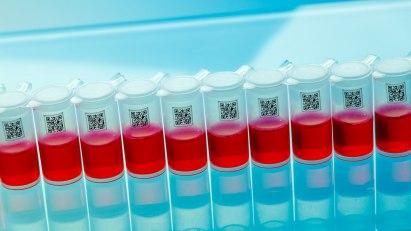 Blutuntersuchung - die Blutgerinnung ist überlebenswichtig