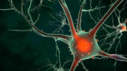 Alzheimer - Sport schützt die Nervenzellen