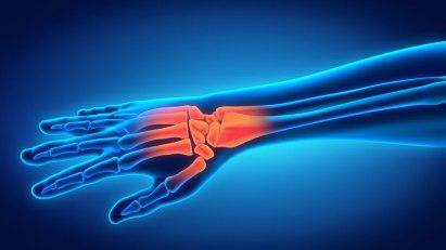 Osteoporose - Ihre Knochen können Sie selbst stärken