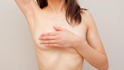 Frau mit Hand auf Brust: Brustkrebs ist die häufigste Krebsart bei Frauen