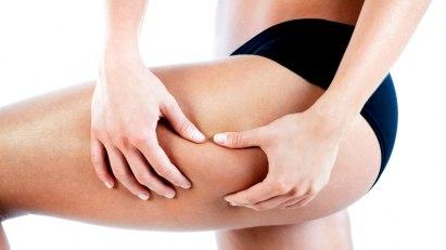 Oberschenkel einer Frau: Was hilft wirklich gegen Cellulite?