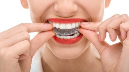 Frau mit Bleaching-Schiene: Bleichen hilft gegen gelbe Zähne