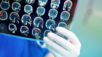 MRT-Bilder vom Gehirn: Thrombektomie revolutioniert die Schlaganfalltherapie