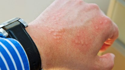 Abbildung von einer Kontaktallergie auf der Hand