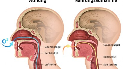 Speiseröhre und Luftröhre liegen anatomisch eng beieinander.