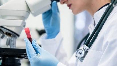 Mittels Blutbild kann die Ursache für Halsschmerzen ermittelt werden. Mitunter sind sie auch ein Symptom für schwere Erkrankungen.