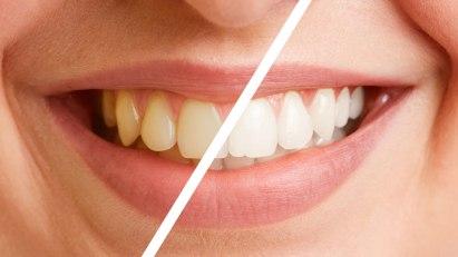 Abbildung von Zähnen mit und ohne Zahnverfärbung
